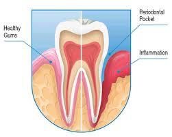 periodontal poket